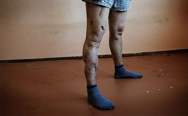 Krokodil Use and Abuse in Australia